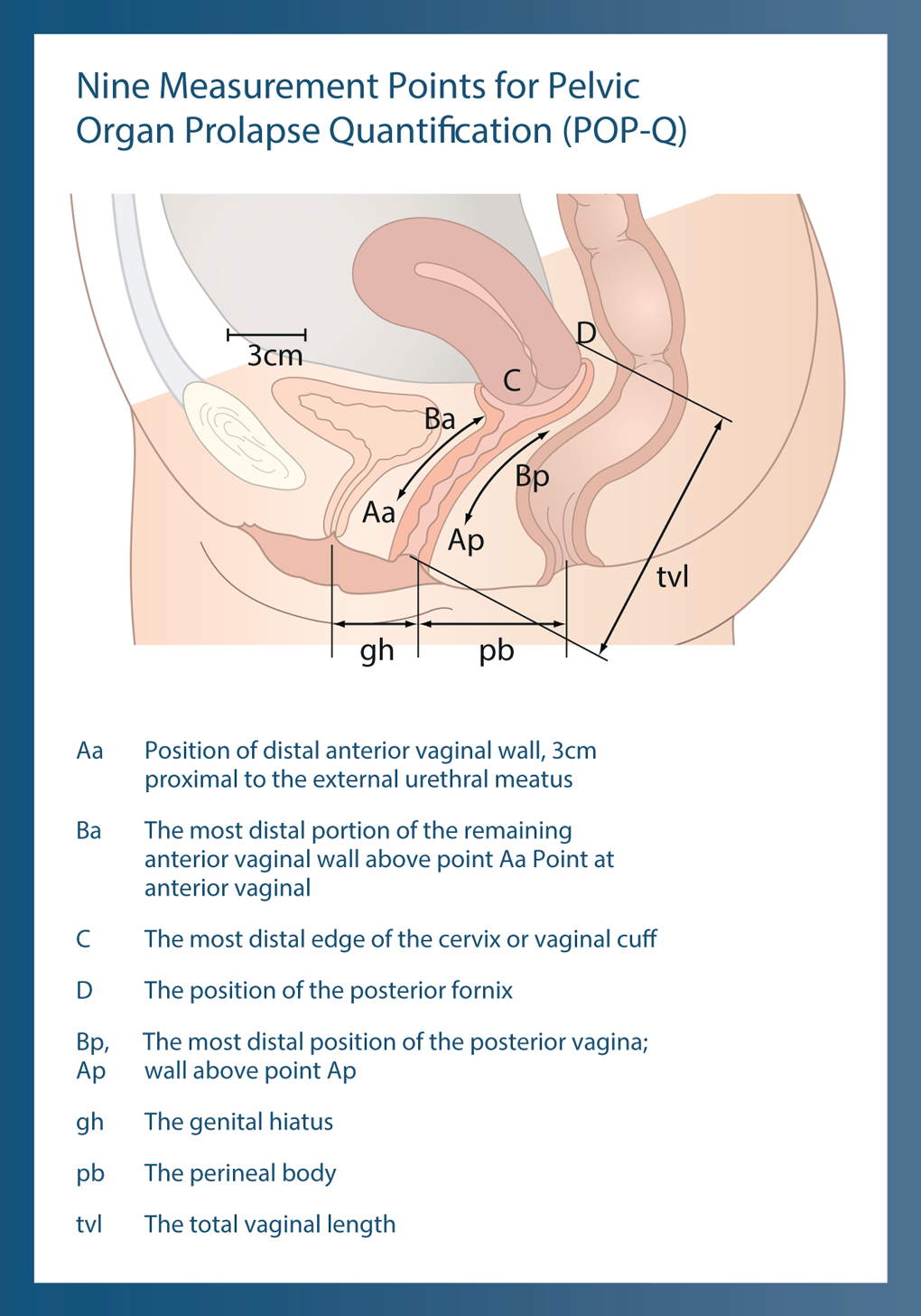 3 dimensional view of vagina